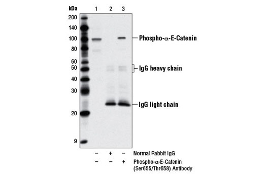 Immunoprecipitation of phospho-α-E-catenin protein from PANC-1 cell extracts using Normal Rabbit IgG #2729 (lane 2) or Phospho-α-E-Catenin (Ser655/Thr658) Antibody (lane 3). Lane 1 is 10% input. Western blot analysis was performed using Phospho-α-E-Catenin (Ser655/Thr658) Antibody.