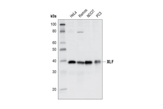 Image 6: Non-Homologous End Joining (NHEJ) DNA Repair Antibody Sampler Kit