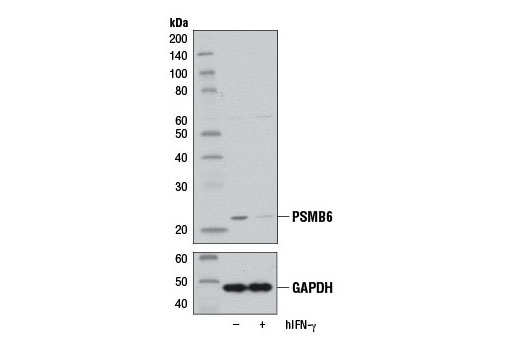 Western blot analysis of extracts from HeLa cells, untreated (-) or treated with Human Interferon-γ (hIFN-γ) #8901 (100 ng/ml, 72 hr; +), using PSMB6 (E1K9O) Rabbit mAb (upper) or GAPDH (D16H11) XP<sup>®</sup> Rabbit mAb #5174 (lower).