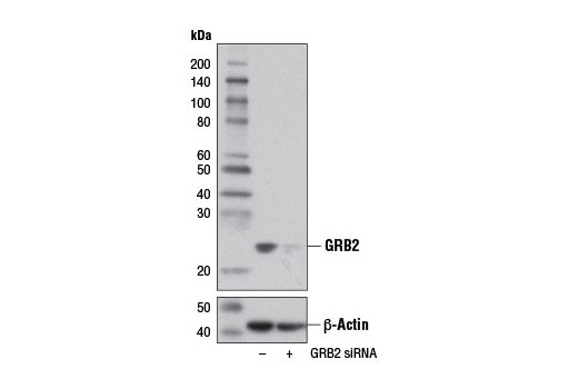 siRNA Transfection sh3 Domain Binding