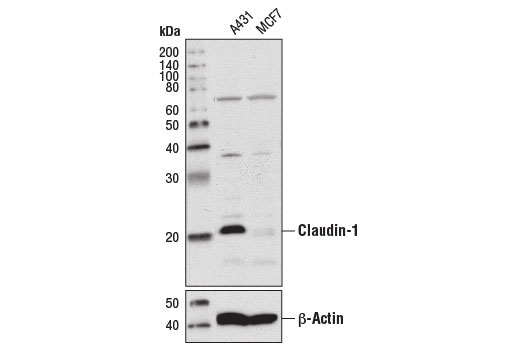 Western blot analysis of extracts from A431 and MCF7 cells using Claudin-1 (D5H1D) XP<sup>®</sup> Rabbit mAb (upper) or β-Actin (D6A8) Rabbit mAb #8457 (lower).