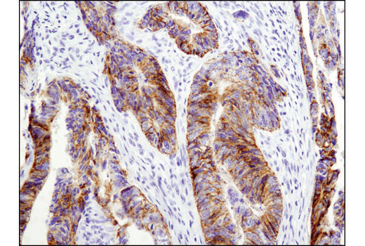 Immunohistochemical analysis of paraffin-embedded human colon carcinoma using Claudin-1 (D5H1D) XP<sup>®</sup> Rabbit mAb.