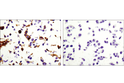 Immunohistochemical analysis of paraffin-embedded cell pellets, A-431 (left) and MCF7 (right), using Claudin-1 (D5H1D) XP<sup>®</sup> Rabbit mAb.