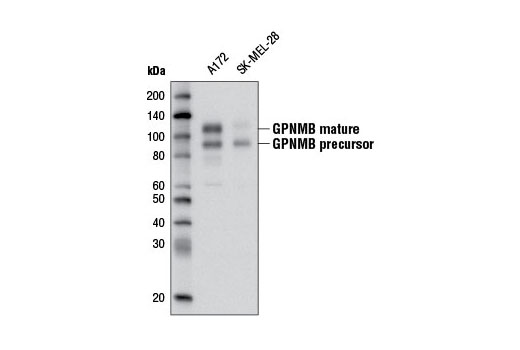 Western blot analysis of extracts from A172 and SK-MEL-28 cells using GPNMB (E1Y7J) Rabbit mAb.