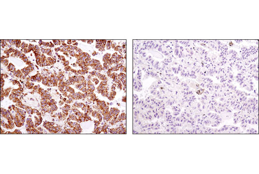 Immunohistochemical analysis of paraffin-embedded human prostate carcinoma using ATPIF1 (D6P1Q) XP® Rabbit mAb in the presence of control peptide (left) or antigen-specific peptide (right).