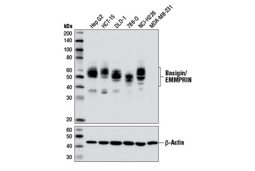 Image 22: Coronavirus Host Cell Attachment and Entry Antibody Sampler Kit
