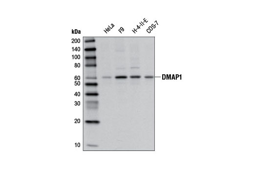 Polyclonal Antibody - DMAP1 Antibody - Immunoprecipitation, Western Blotting, UniProt ID Q9NPF5, Entrez ID 55929 #13326 - Chromatin Regulation / Nuclear Function