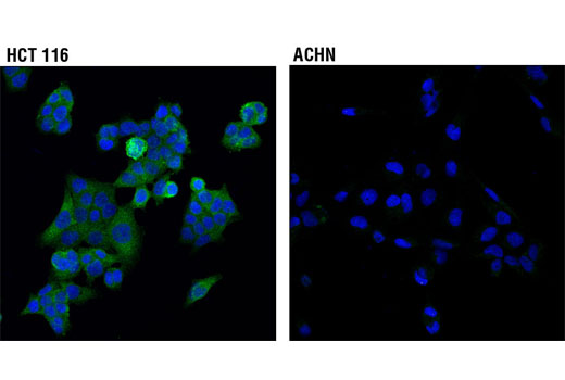Confocal immunofluorescent analysis of HCT 116 (higher expressing, left) and ACHN (lower expressing, right) cells using SAV1 (D6M6X) Rabbit mAb (green). Blue pseudocolor = DRAQ5<sup>®</sup> #4084 (fluorescent DNA dye).