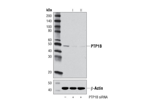 Western blot analysis of extracts from HeLa cells, transfected with SignalSilence<sup>®</sup> Control siRNA (unconjugated) #6568 (-), SignalSilence<sup>®</sup> PTP1B siRNA I #13348 (+) or SignalSilence<sup>®</sup> PTP1B siRNA II (+), using PTP1B Antibody #5311 (upper) or β-Actin (D8A6) Rabbit mAb #8457 (lower). The PTP1B Antibody confirms silencing of PTP1B expression, while the β-Actin (D8A6) Rabbit mAb is used as a loading control.