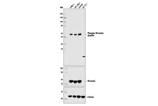 Western blot analysis of extracts from various cell lines using Phospho-Vimentin (Ser39) Antibody (upper), Vimentin (D21H3) XP<sup>®</sup> Rabbit mAb #5741 (middle), and β-Actin (D6A8) Rabbit mAb #8457 (lower). Publications have shown that the human breast carcinoma cell line, ZR-75-1, does not express vimentin.