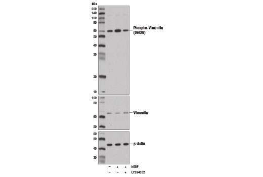 Western blot analysis of SK-LMS-1 cell extracts, serum-starved for 16 hr and treated with LY294002 #9901 (50 μM, 30 min; +) and/or Human Epidermal Growth Factor (hEGF) #8916 (100 ng/ml, 30 min; +), using Phospho-Vimentin (Ser39) Antibody (upper), Vimentin (D21H3) XP<sup>®</sup> Rabbit mAb #5741 (middle), and β-Actin (D6A8) Rabbit mAb #8457 (lower).