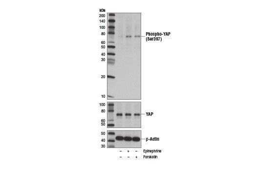 Western blot analysis of extracts from MDA-MB-231 cells, vehicle treated (-) or treated with epinephrine (10 μM, 60 min; +) or Forskolin #3828 (10 μm, 60 min; +), using Phospho-YAP (Ser397) (D1E7Y) Rabbit mAb (upper), YAP Antibody #4912 (middle), and β-Actin (D6A8) Rabbit mAb #8547 (lower). <b>YAP protein isoform 1 Ser397 corresponds to Ser381 of YAP isoform 2, as reported by Zhao, B. et al. (2010) <i>Genes Dev</i> 24, 72-85 (9).</b>
