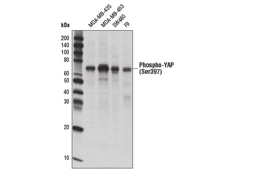 Western blot analysis of extracts from various cell lines using Phospho-YAP (Ser397) (D1E7Y) Rabbit mAb.