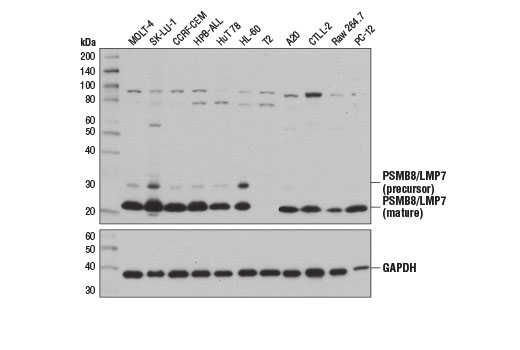 Western blot analysis of extracts from various cell lines using PSMB8/LMP7 (D1K7X) Rabbit mAb (upper) and GAPDH (D16H11) XP<sup>®</sup> Rabbit mAb #5174 (lower). (The T2 cell line contains a homozygous deletion of <i>PSMB8/LMP7</i> (13)).
