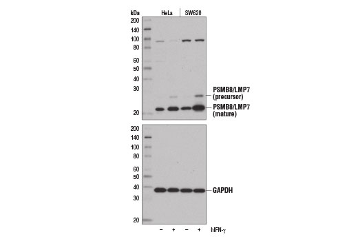 Western blot analysis of extracts from HeLa and SW620 cells, untreated (-) or treated with Human Interferon-γ (hIFN-γ) #8901 (100 ng/ml, 72 hr; +), using PSMB8/LMP7 (D1K7X) Rabbit mAb (upper) and GAPDH (D16H11) XP<sup>®</sup> Rabbit mAb #5174 (lower).