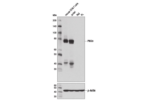 Western blot analysis of extracts from various cell lines using PKCθ (E1I7Y) Rabbit mAb (upper) and β-Actin (D6A8) Rabbit mAb #8457 (lower).