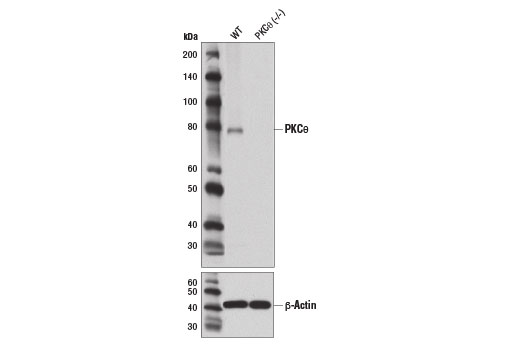 Western blot analysis of extracts from wild-type and PKCθ (-/-) mouse splenocytes using PKCθ (E1I7Y) Rabbit mAb (upper) and β-Actin (D6A8) Rabbit mAb #8457 (lower). Extracts from wild-type and PKCθ (-/-) mouse splenocytes were kindly provided by Dr. Morgan Huse (Memorial Sloan-Kettering Cancer Center).