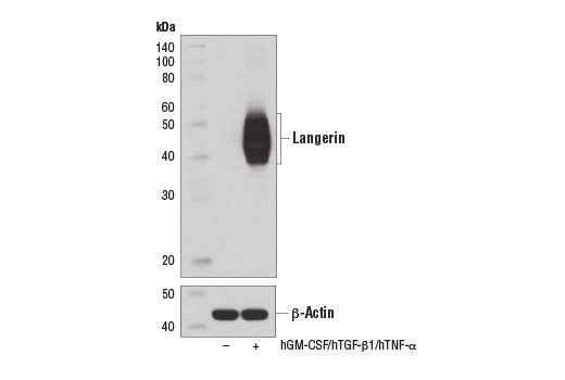 Western blot analysis of extracts from MUTZ-3 cells, undifferentiated (-) or differentiated (+) into Langerhans-like cells by treatment with Human Granulocyte Macrophage Colony Stimulating Factor (hGM-CSF) #8922 (100 ng/ml), Human Transforming Growth Factor β1 (hTGF-β1) #8915 (10 ng/ml), and Human Tumor Necrosis Factor-α (hTNF-α) #8902 (2.5 ng/ml) for 10 d, using Langerin (D9H7R) XP<sup>®</sup> Rabbit mAb (upper) and β-Actin (D6A8) Rabbit mAb #8457 (lower).