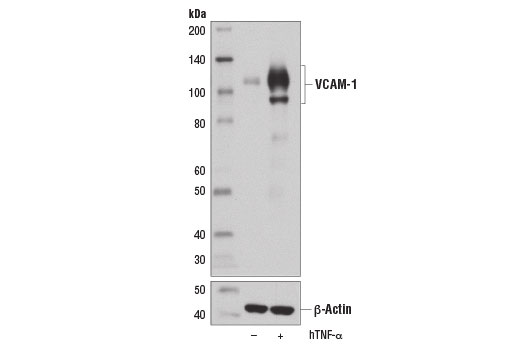 Western blot analysis of extracts from HUVEC cells, untreated (-) or treated with Human Tumor Necrosis Factor-α (hTNF-α) #8902 (10 ng/ml, 16 hr; +), using VCAM-1 (E1E8X) Rabbit mAb (upper) or β-Actin (D6A8) Rabbit mAb #8457 (lower).