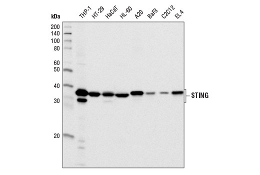 Western blot analysis of extracts from various cell lines using STING (D2P2F) Rabbit mAb.