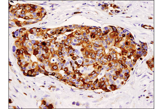 Immunohistochemical analysis of paraffin-embedded human breast carcinoma using Stathmin (D1Y5A) Rabbit mAb.