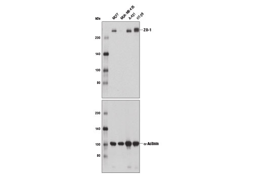 Western blot analysis of extracts from various cell lines using ZO-1 (D6L1E) Rabbit mAb (upper) and α-Actinin (D6F6) XP<sup>®</sup> Rabbit mAb #6487 (lower).