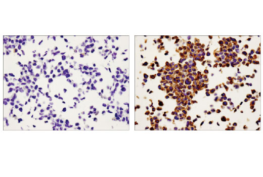 Immunohistochemical analysis of paraffin-embedded U-2 OS cell pellets, untreated (left) or treated with TPA #4174 (right), using MMP-9 (D6O3H) XP<sup>®</sup> Rabbit mAb.