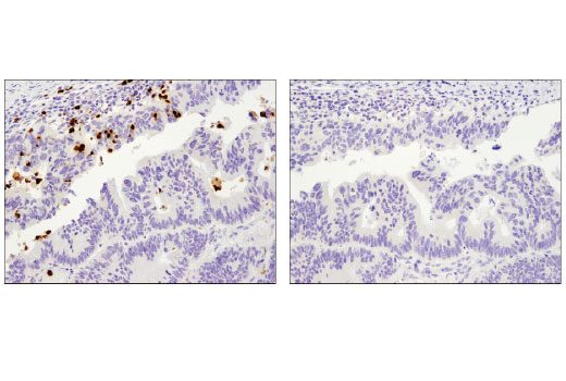 Immunohistochemical analysis of paraffin-embedded human colon carcinoma using MMP-9 (D6O3H) XP<sup>®</sup> Rabbit mAb in the presence of control peptide (left) or antigen-specific peptide (right).
