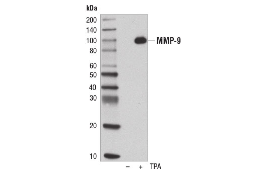 Western blot analysis of concentrated, serum-free cultured medium from U-2 OS cells, untreated (-) or treated with TPA #4174 (200 nM, 48 hr; +), using MMP-9 (D6O3H) XP<sup>®</sup> Rabbit mAb.