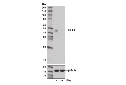 Western blot analysis of extracts from A549 cells, IFN-γ treated (100 ng/mL, 48 hr; +) or untreated (-), using PD-L1 (E1L3N<sup>®</sup>) XP<sup>®</sup> Rabbit mAb (upper) or β-Actin (D6A8) Rabbit mAb #8457 (lower).