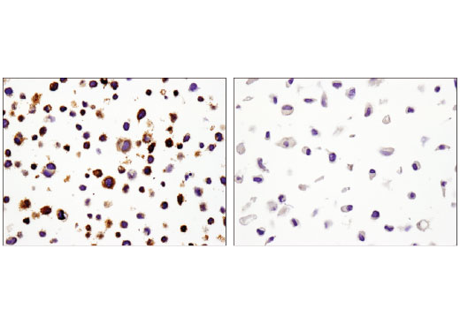 Immunohistochemical analysis of paraffin-embedded Karpas-299 (left) or PC-3 (right) cell pellets using PD-L1 (E1L3N<sup>®</sup>) XP<sup>®</sup> Rabbit mAb.