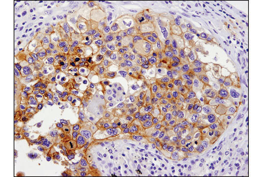 Immunohistochemical analysis of paraffin-embedded human lung carcinoma using PD-L1 (E1L3N<sup>®</sup>) XP<sup>®</sup> Rabbit mAb.