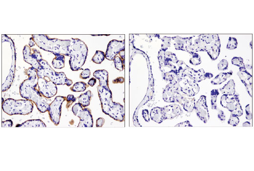 Immunohistochemical analysis of paraffin-embedded human placenta using PD-L1 (E1L3N<sup>®</sup>) XP<sup>®</sup> Rabbit mAb in the presence of control peptide (left) or antigen-specific peptide (right).
