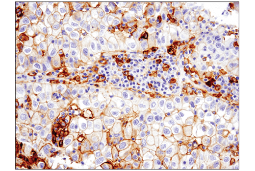 Immunohistochemical analysis of paraffin-embedded human non-small cell lung carcinoma using PD-L1 (E1L3N<sup>®</sup>) XP<sup>®</sup> Rabbit mAb performed on the Leica® BOND™ Rx.