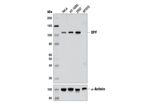 Western blot analysis of extracts from various cell lines using XPF (D3G8C) Rabbit mAb (upper) and α-Actinin (D6F6) XP<sup>®</sup> Rabbit mAb #6487 (lower).