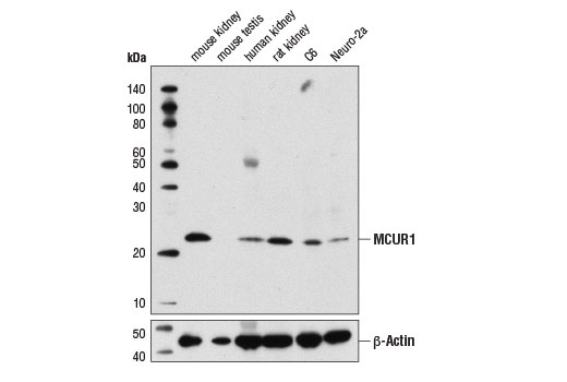 Western blot analysis of extracts from various tissues and cell lines using MCUR1 Antibody (upper) and β-Actin (D6A8) Rabbit mAb #8457 (lower).