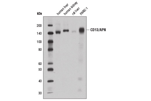 Western blot analysis of extracts from various tissues and cell lines using CD13/APN (E1Y7U) Rabbit mAb.