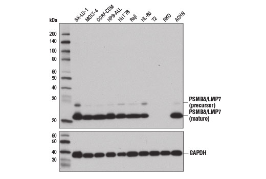 Western blot analysis of extracts from various cell lines using PSMB8/LMP7 (1A5) Mouse mAb (upper) and GAPDH (D16H11) XP® Rabbit mAb #5174 (lower). (The T2 (13) and RKO (8) cell lines are both deficient in PSMB8/LMP8 protein expression).