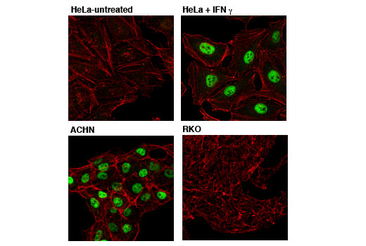 Confocal immunofluorescent analysis of HeLa cells, untreated (upper, left) or treated with hIFN-γ #8901 (100 ng/ml, 72 hr; upper, right), or ACHN cells (lower, left) and RKO cells (lower, right), using PSMB8/LMP7 (1A5) Mouse mAb (green) and β-Actin (13E5) Rabbit mAb #4970 (red).