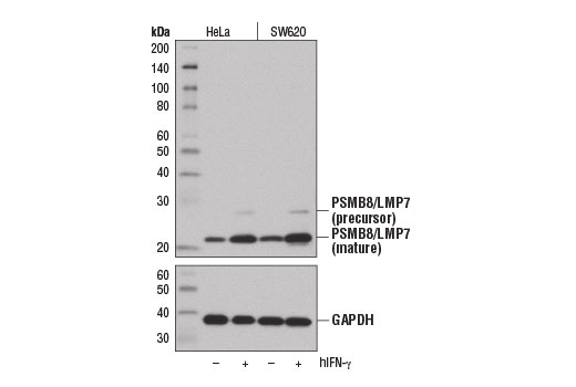 Monoclonal Antibody - PSMB8/LMP7 (1A5) Mouse mAb, UniProt ID P28062, Entrez ID 5696 #13726 - Ubiquitin and Ubiquitin-Like Proteins