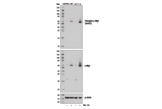 Western blot analysis of extracts from KARPAS-299 and HCT 116 cells, untreated (-) or treated with MG-132 #2194 (10 μM, overnight; +), using Phospho-c-Myc (Ser62) (E1J4K) Rabbit mAb (upper), c-Myc (D84C12) XP<sup>®</sup> Rabbit mAb #5605 (middle), and β-Actin (D6A8) Rabbit mAb #8457 (lower).