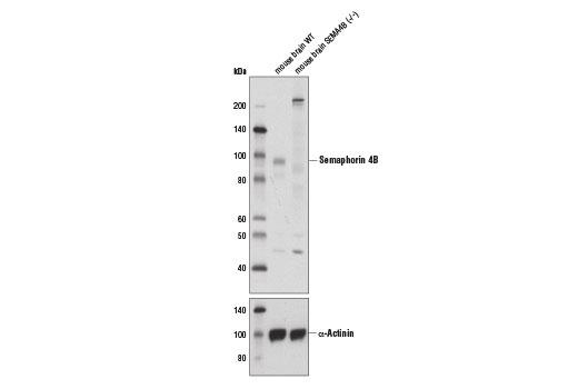 Polyclonal Antibody - Semaphorin 4B Antibody - Western Blotting, UniProt ID J3KNP4, Entrez ID 10509 #13771 - #13771