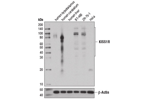 Monoclonal Antibody Western Blotting Neuropeptide Receptor Activity