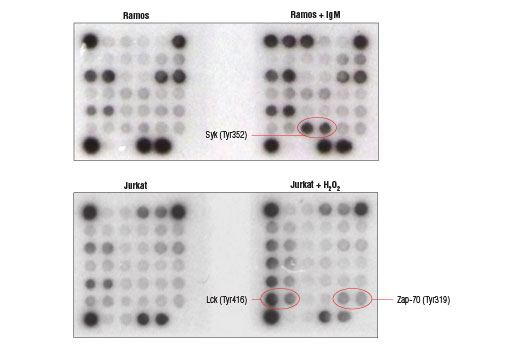 Image 2: PathScan® Immune Cell Signaling Antibody Array Kit (Chemiluminescent Readout)