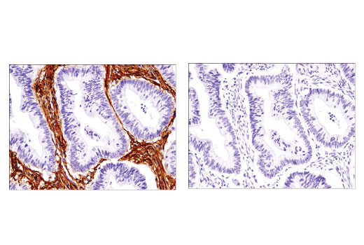 Immunohistochemical analysis of paraffin-embedded human colon adenocarcinoma using Thy1/CD90 (D3V8A) Rabbit mAb in the presence of control peptide (left) or antigen-specific peptide (right).