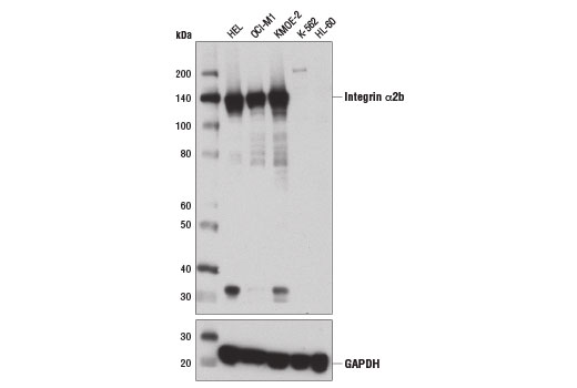 Western Blotting - Integrin α2b (D8V7H) Rabbit mAb