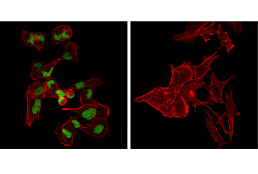 Monoclonal Antibody Immunofluorescence Immunocytochemistry Skeletal Muscle Development