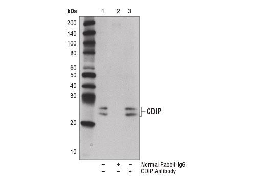 Polyclonal Antibody - CDIP Antibody - Immunoprecipitation, Western Blotting, UniProt ID Q9H305, Entrez ID 29965 #13824, Apoptosis