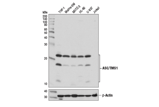 Western blot analysis of extracts from various cell lines using ASC/TMS1 (E1E3I) Rabbit mAb (upper) or β-Actin (D6A8) Rabbit mAb #8457 (lower). As expected, Jurkat cells do not express ASC/TMS1.
