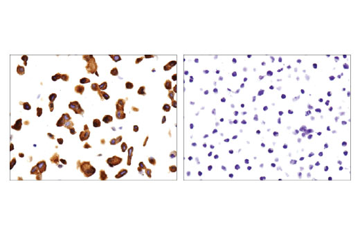 Immunohistochemical analysis of paraffin-embedded T-47D (left) and Jurkat (right) cell pellets using p130 Cas (E1L9H) Rabbit mAb.